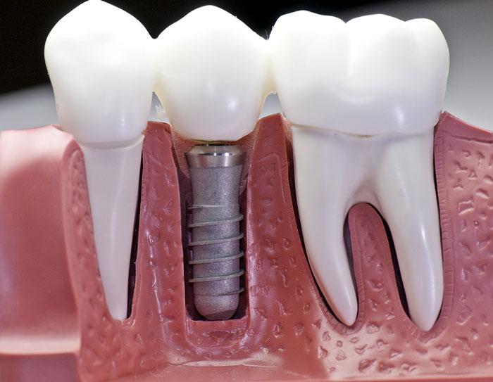 servicios_implantes_dentales