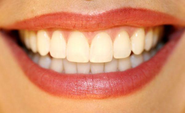 ¿Por qué la ortodoncia ayuda a mejorar la calidad de vida?